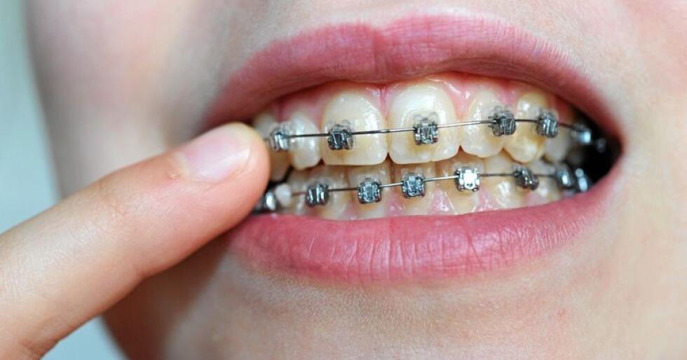 Helseminister Bent Høie vil stramme inn på refusjon for utgifter til tannregulering. Foto: Frank May / NTB scanpix