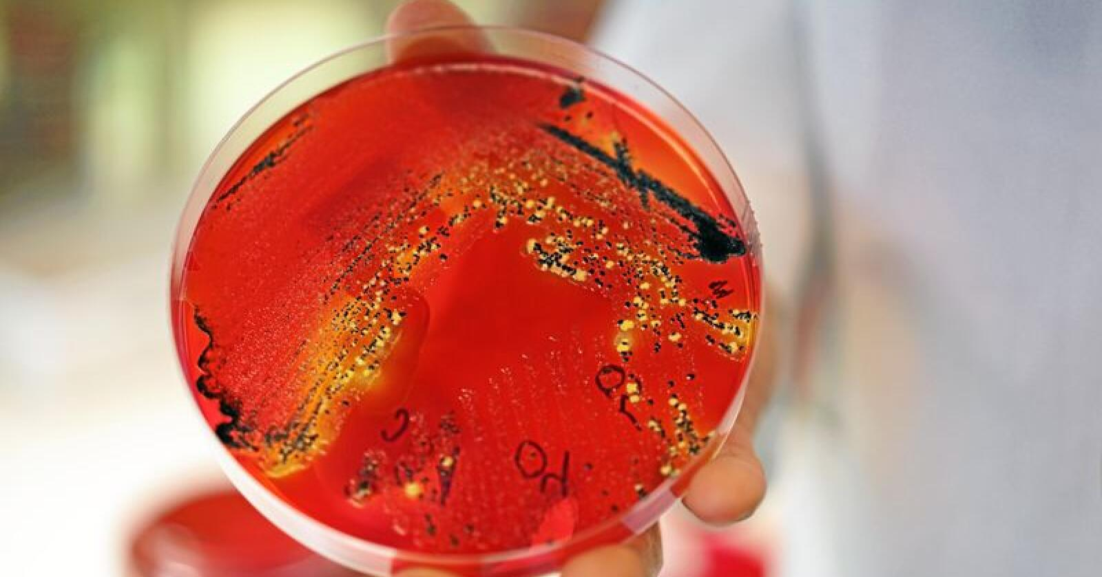 Det er påvist salmonella i en pose med tørket frukt fra Bama. Illustrasjonsfoto: Benjamin Hernes Vogl