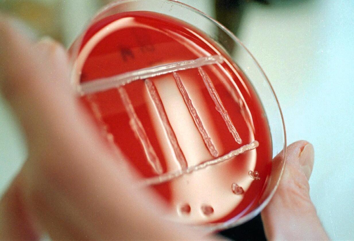 Listeria: Bakterien kan spesielt besmitte matvarer som kjøtt, meieriprodukter, sjømat og frukt og grønt. Årsaken til utbruddet er fortsatt ikke kjent. Foto: Colourbox.com
